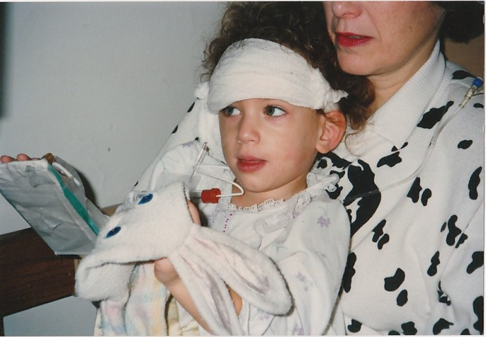 Me 25 years ago when I just had my first cochlear implant surgery.
